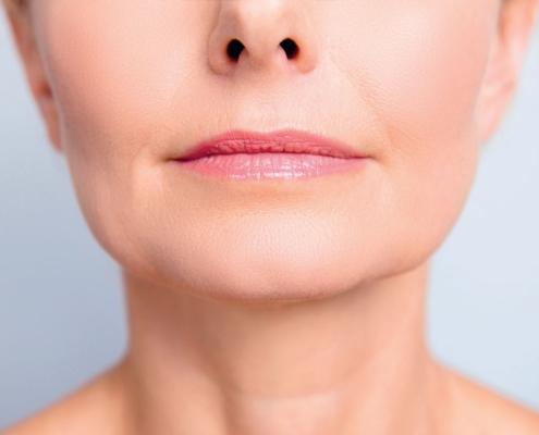 Renuvion® Gesicht: Strafferes Gewebe für Kinn-Kiefer-Linie und Hals